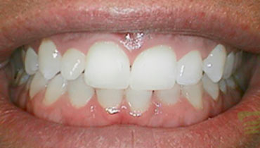 upclose photo of tooth after dental procedure
