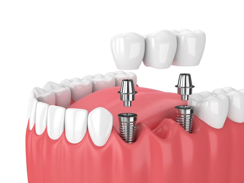 dental implant restoration illustration