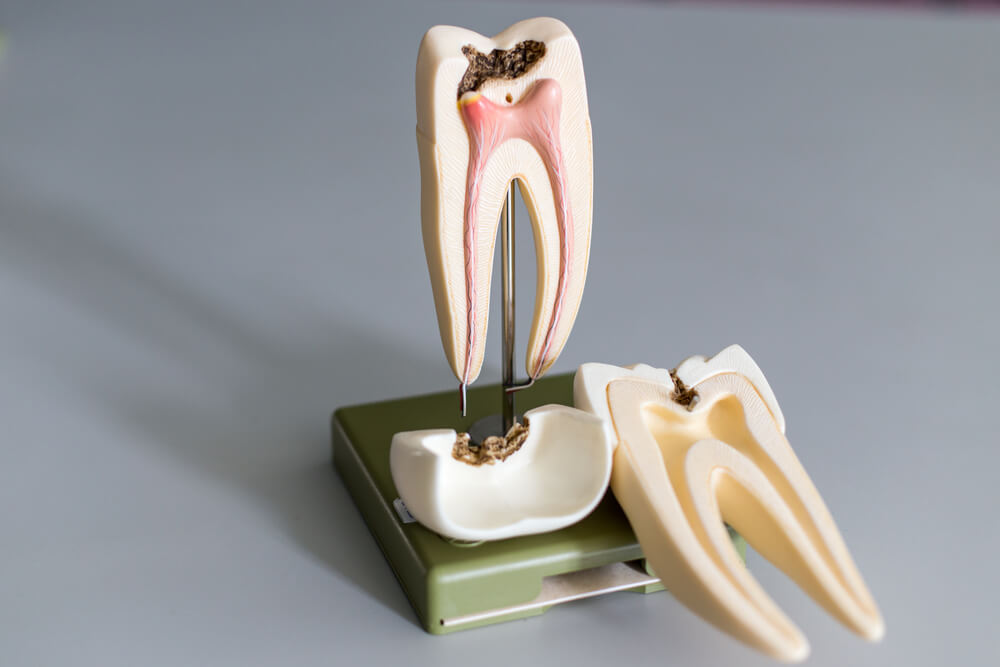 dental figure of root canal