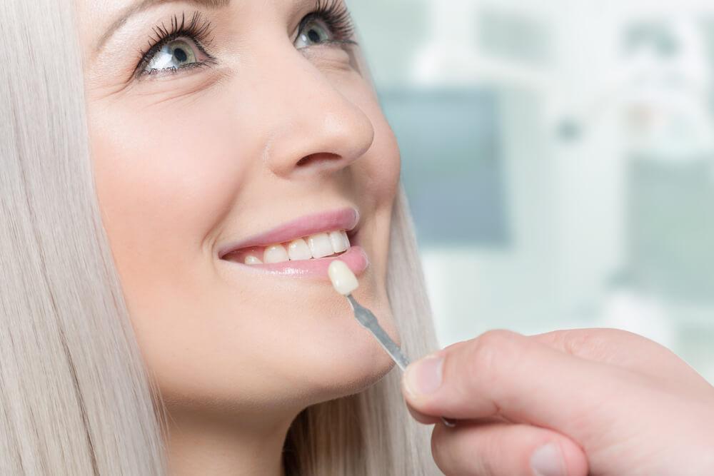 woman being examined for veneers