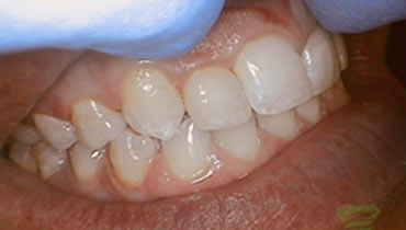 upclose photo of tooth before dental procedure